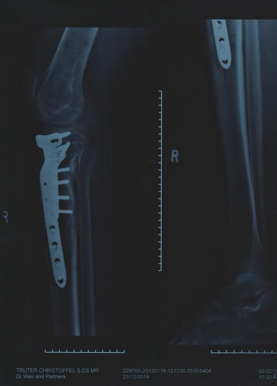 My Leg Fractures